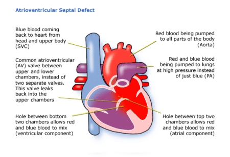 Children\'s Heart Federation | Atrioventricular Septal Defect (AVSD)