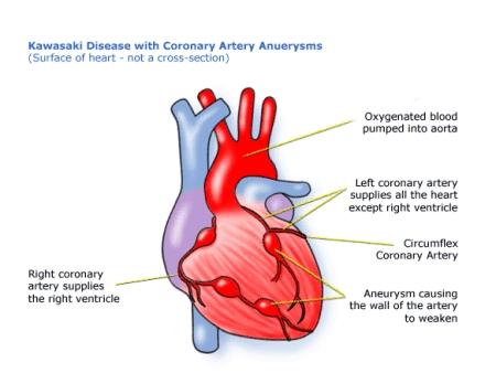Kawasaki disease with coronary artery aneurysm
