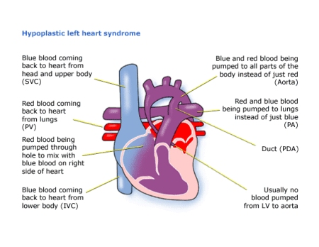 Heart diagram pda online schematic diagram children s heart federation hypoplastic left heart syndrome hlhs rh chfed org uk heart diagram pbs heart diagram pictures ccuart Gallery