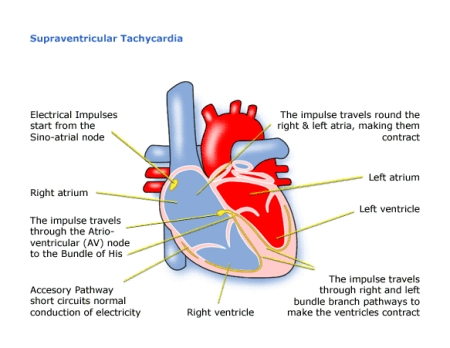 What Is Svt >> Children S Heart Federation Supraventricular Tachycardia Svt