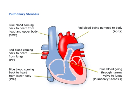 Childrens heart federation pulmonary stenosis diagram of pulmonary stenosis ccuart Gallery