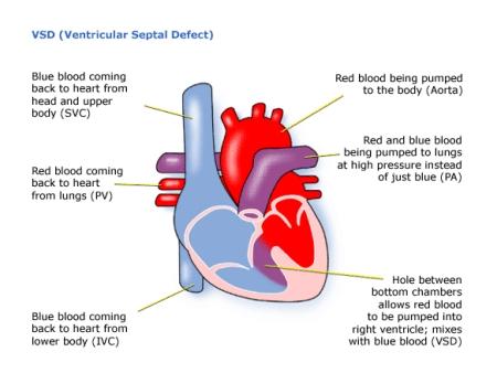 Children\'s Heart Federation | Ventricular Septal Defect (VSD)